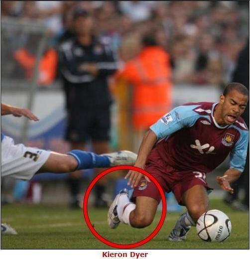 Чуть не оторвало ногу: самые страшные травмы в футболе