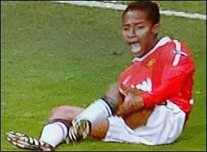 Самые страшные травмы в футболе