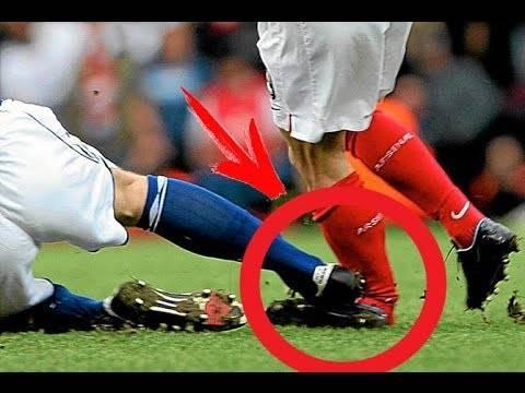 Самые распространенные травмы футболистов