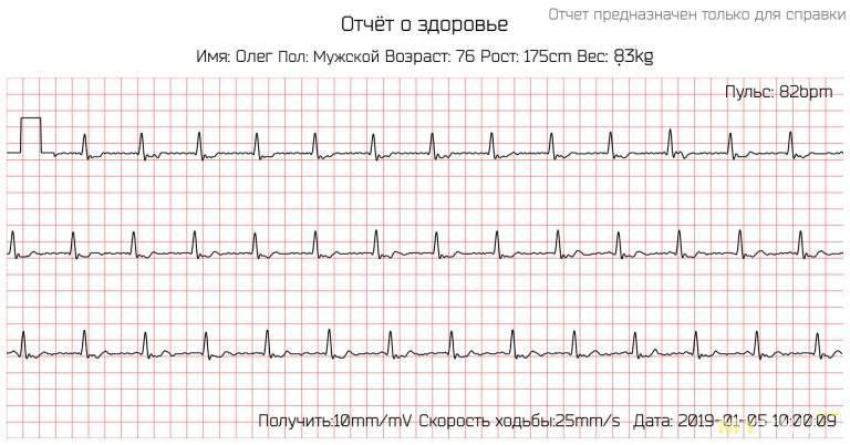 Чем опасна мерцательная аритмия сердца?